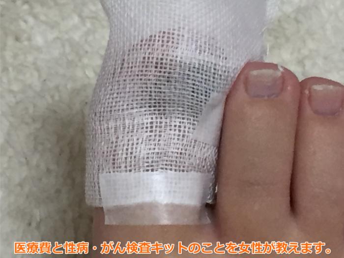 足爪剥がれる痛くない黒い内出血処置テープガーゼ4