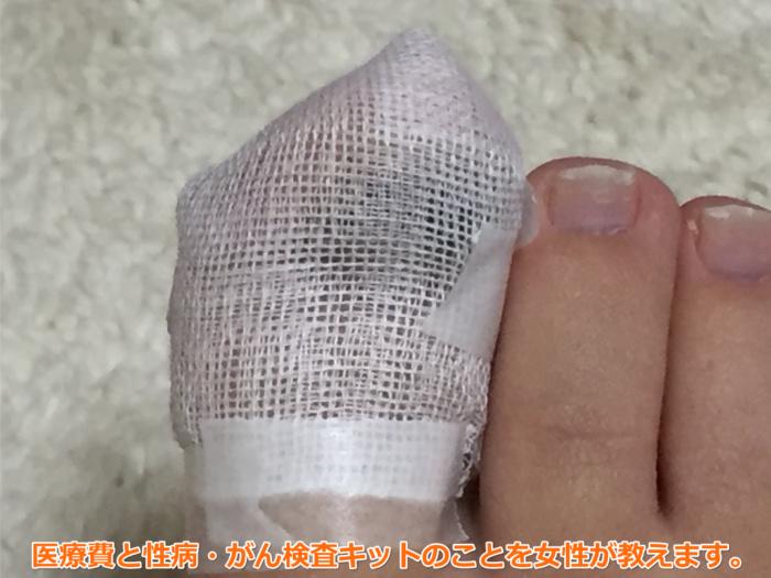 足爪剥がれる痛くない黒い内出血処置テープガーゼ6