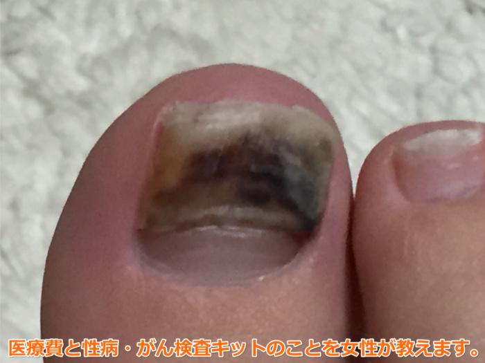 足爪剥がれる痛くない黒い内出血1