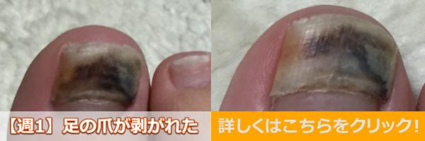 足爪剥がれる痛くない黒い内出血処置テープガーゼバナー1