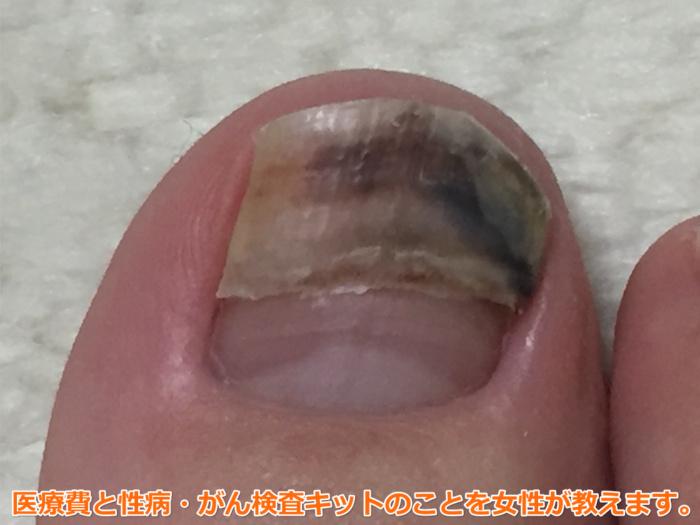 足爪剥がれる痛くない黒い内出血5週間後1