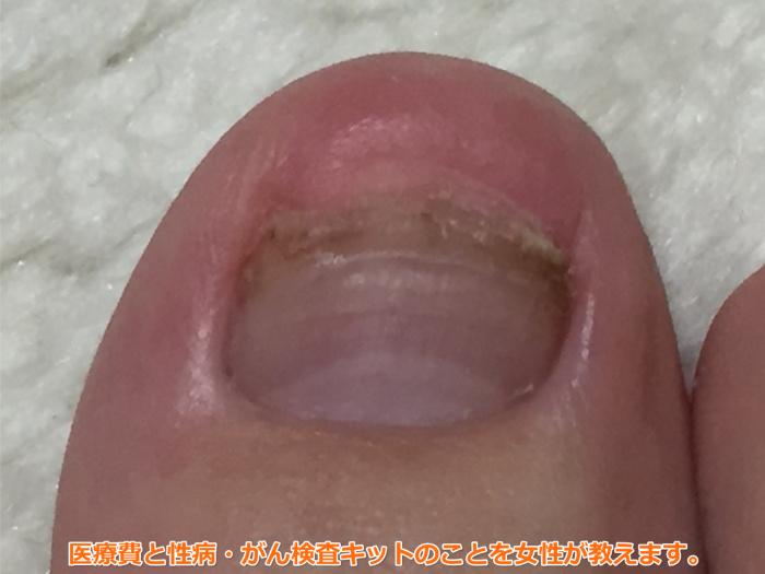 足の爪が剥がれた(49日目)爪がない指で歩いても日常生活に支障なし。