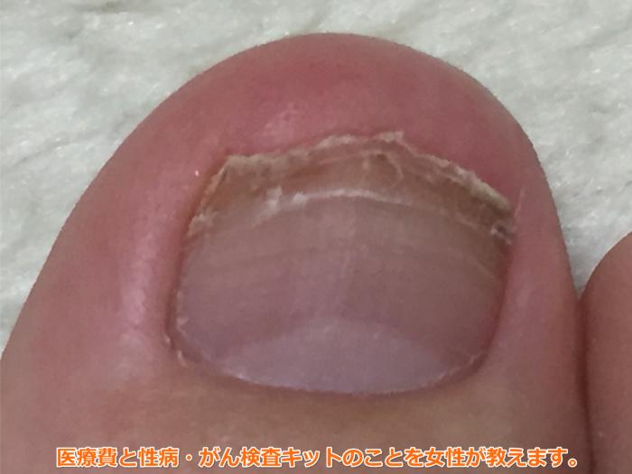 足爪剥がれる痛くない黒い内出血10週間後1